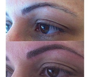 Eyebrow tattooing skinnovation laser clinic for Eyebrows tattoo removal laser