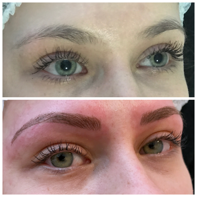 Eyebrow Feathering Skinnovation Laser Clinic