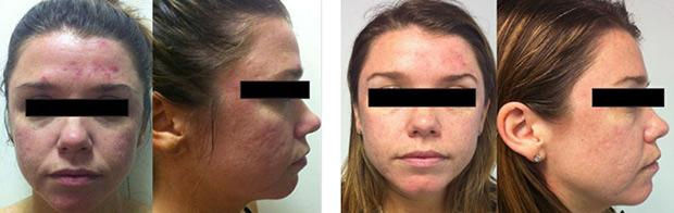 Blog Skinnovation Laser Clinic