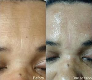 wrinklescollage1