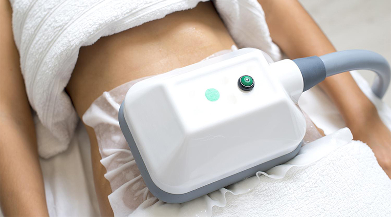 women having cryolipolysis done on stomach