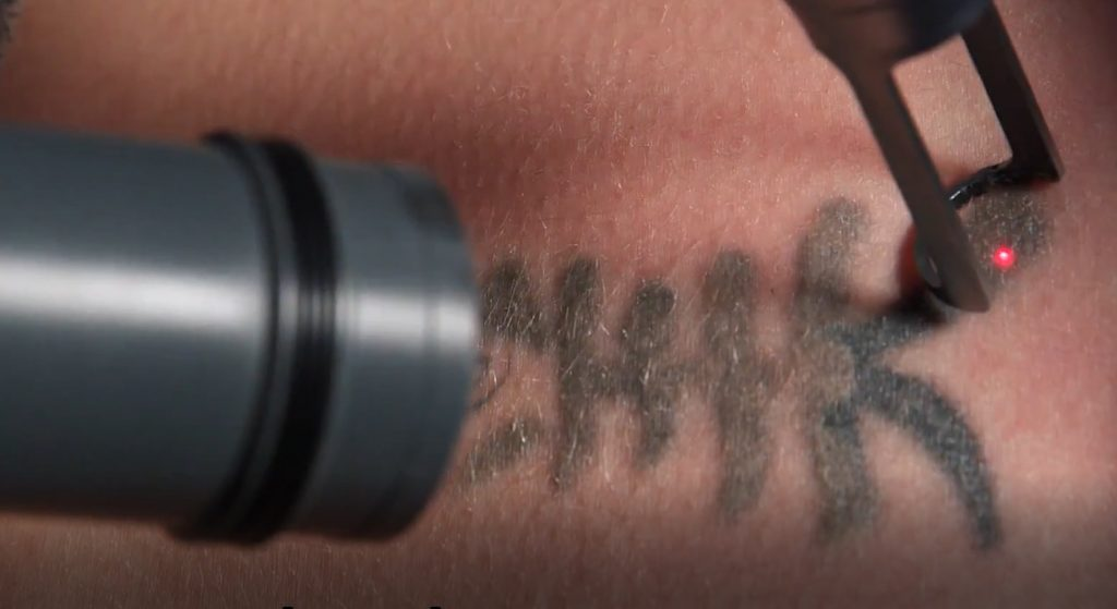 close up shot of tattoo removal with laser